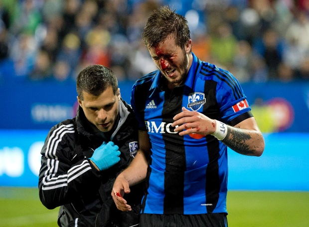 Montreal Impact's Jeb Brovsky is led off the pitch following a clash of heads with Vancouver Whitecaps' Jordan Harvey (not shown) during second half first leg action of the Amway Canadian Championship soccer final in Montreal, Wednesday, May 15, 2013. THE CANADIAN PRESS/Graham Hughes