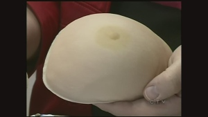 CTV Regina: Breast reconstruction petition