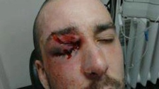 A photo from CLASSE of the CEGEP student who allegedly suffered an eye injury in Montreal on Wednesday.