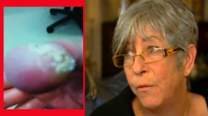 Judy Jacobson endured intense pain and damage to her thumb (at left, seen after the treatment) as a result of what seemed like a minor mishap at the time.