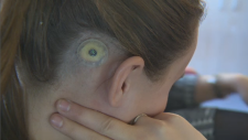 Karina Theoret's hearing aid