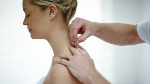 A research team from Wuhan University, China, has reviewed studies on the safety and the effectiveness of acupuncture as a treatment for mild cognitive impairment © Dean Mitchell / Istock.com
