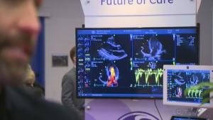CTV Montreal: Montreal hosts cardio experts