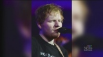 CTV Montreal: Sheeran scarred