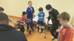 """Performer Luca """"Lazylegs"""" Patuelli was on hand for the launch of a new clinic at the Shriners for those with arthrogryposis, a disease he suffers from."""