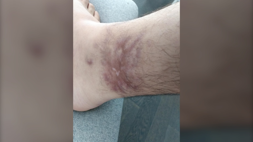 Samer's ankle